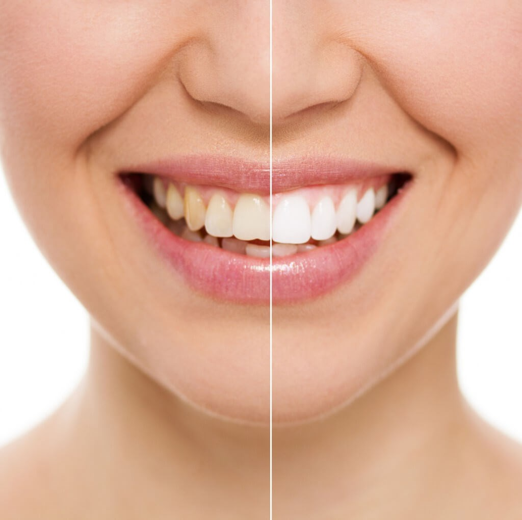 How To Whiten Teeth Teeth Discoloration Aacd